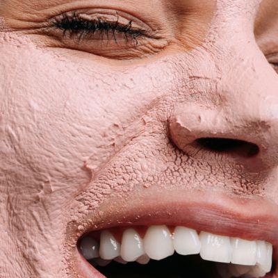 acn huid